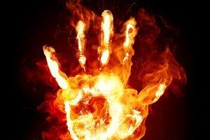 Живой факел: в Ровенской области сильно обгорел мальчик