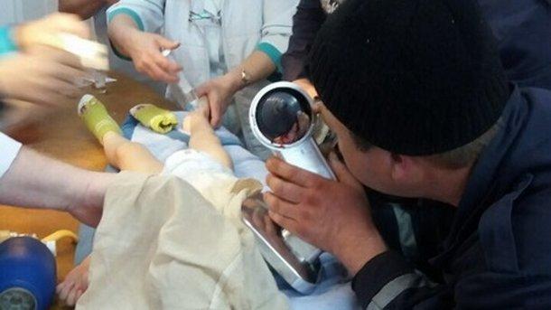 Cотрудники экстренных служб освободили руку двухлетнего ребенка изсоковыжималки вОдесской области