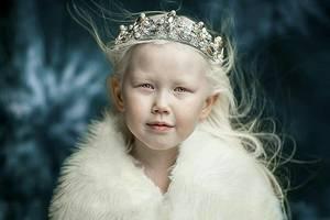 8-летняя девочка-альбинос из Якутии покорила Интернет