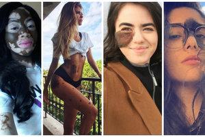 Не такие, как все: ТОП-7 девушек с необычными пятнами на теле