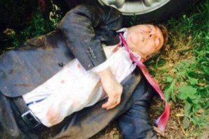 Опубликовано фото киллера в больнице, напавшего на Осмаева и Окуеву