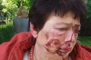В Коцюбинском жестоко избили главу избирательной комиссии