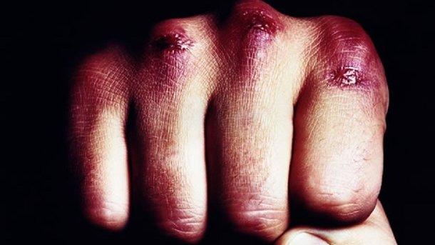 ВОдессе двое безжалостно избивали рабочих ипрохожих