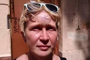 В Одессе избили активистку: озвучены подробности нападения
