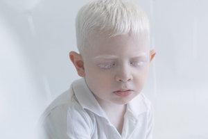 Гипнотизирующая красота людей-альбиносов в объективе фотографа