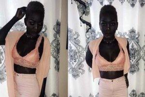 Королева темноты: 24-летняя африканка, страдавшая от издевательств из-за цвета кожи, стала моделью
