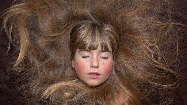 Что делать если у пожилых женщин выпадают волосы