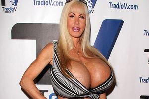 Порноактриса отказалась удалить зараженные гигантские имплантаты, выбрав карьеру