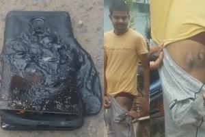 В Индии у мужчины в кармане взорвался смартфон Xiaomi