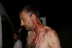 Под Одессой зверски избили журналиста