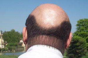 Какие гормоны сдать при прыщах и выпадении волос