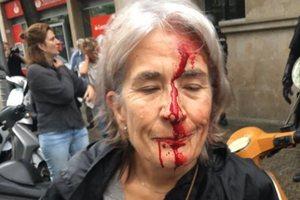 Референдум и протесты в Каталонии: полиция сообщила о трех погибших