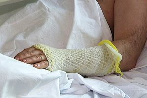 Во Львовской области работник шахты с ожогами попал в реанимацию
