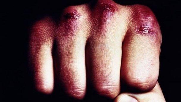 На Львовщине избили депутата. Фото: Фото: dpchas.com.ua