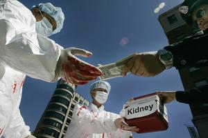 Головы по 300 долларов: в США законно торгуют частями человеческих тел
