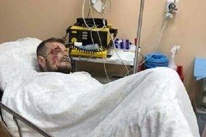 """""""Вытащили много осколков"""": Мосийчук рассказал о своем состоянии после операции"""