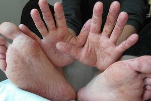 Корь в Украине: в Запорожье заболели 14 детей из одного класса