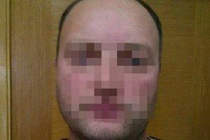 В Киеве задержали дезертира, который работал на ФСБ в Крыму