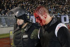 Футбольное дерби завершилось кровавым побоищем в Сербии