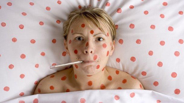 Болезнь в возрасте «за». Корью могут заболеть те взрослые, кому сейчас 30—45 лет: в их детство вакцинация проводилась лишь единожды