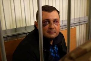 В СБУ прокомментировали синяки Шепелева