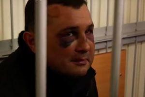 """""""Меня били, сильно"""": Шепелев рассказал подробности о  его """"похищении"""""""