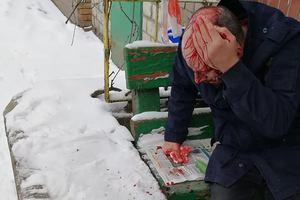 В центре Киева у пункта полиции грабители разбили голову мужчине