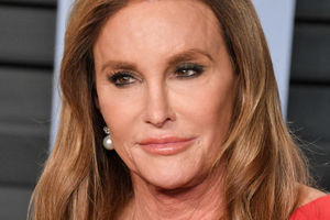 Kathleen Jenner has posted a shocking photo to Instagram