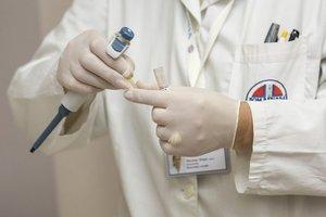 В Запорожье эпидемия опасной болезни пошла на спад - Минздрав