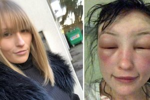 """""""Я почти ослепла и металась в агонии"""": 21-летняя девушка едва не умерла, покрасив волосы дома"""