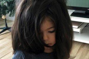 Как живет девочка с аномалией стремительного роста волос: впечатляющие фото
