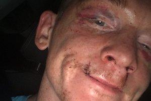 Порванная губа и заплывшие глаза: британский боксер шокировал своим лицом после поражения