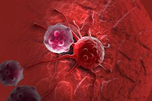 Ученые назвали неожиданную причину рака