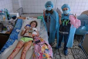 """Взрыв возле """"Волги"""" в Киеве: пострадавшему пятилетнему мальчику сохранили глаза"""