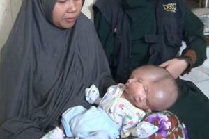 В Индонезии родился ребенок с двумя лицами: опубликовано видео