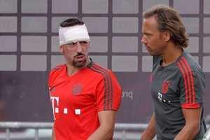 Франк Рибери разбил голову об штангу на тренировке