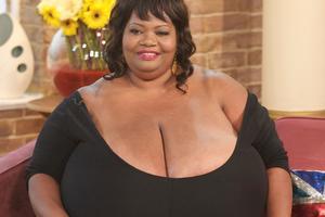 Американка страдает из-за аномального роста груди невероятного размера: впечатляющие фото