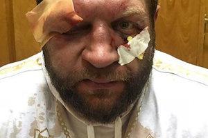 Емельяненко с разбитым лицом покинул арену на