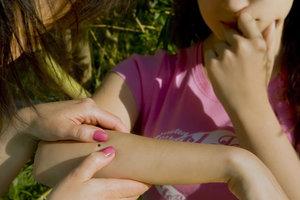 В Днепропетровской области после укуса клеща болезнью Лайма заразились 69 человек