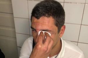 В Киеве неизвестные избили главу молодежного крыла известной партии