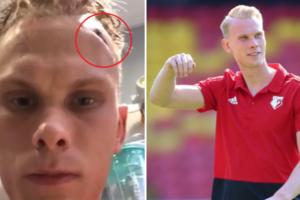 Шведский вратарь в соцсетях показал жуткую травму головы