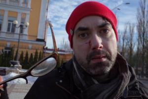 Избиение иностранного фотографа: пострадавший рассказал подробности