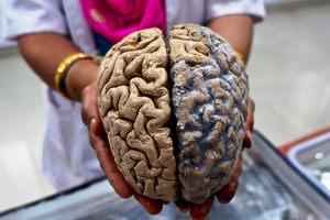 В мозге человека обнаружили нечто невероятное