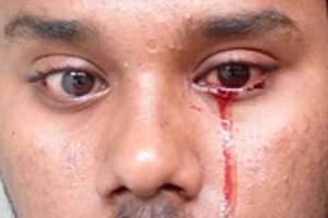 """В Индии нашли """"плачущего кровавыми слезами"""" мужчину"""