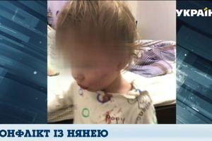 Скандал в Одессе: мать обвиняет няню в избиение годовалого ребенка