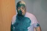 Добкин: сторонник Тимошенко обжегся зеленкой сам