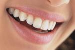Японцы придумали искусственную зубную эмаль