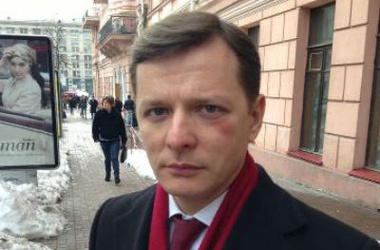 В Донецкой области с марта погибли 432 человека, 1015 - ранены, - ДонОГА - Цензор.НЕТ 3919