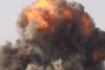 Подробности взрыва на Харьковщине: 26-летний инспектор лишился ног и руки