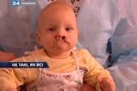 Родители отказались от некрасивого ребенка, но врачи подарят ему новое лицо